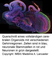 Querschnitt eines vollständigen cerebralen Organoids mit verschiedenen Gehirnregionen.